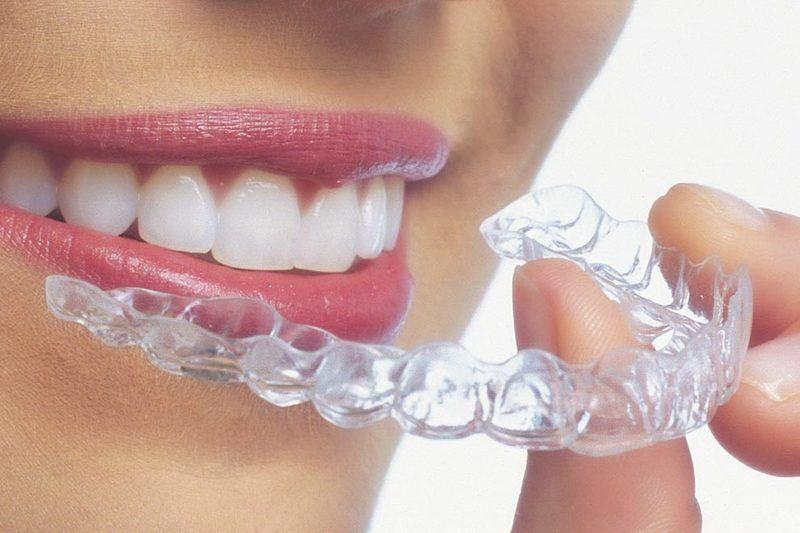 Invisalign® Aligners   Dentist in Washington, DC